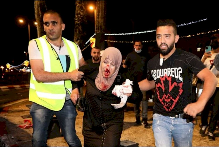 About 90 Palestinians injured in Israeli crackdown